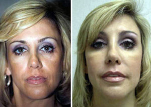 Facial Fillers/Botox/Fat Injection