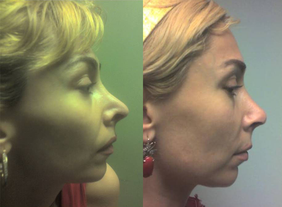 Revision Rhinoplasty Cartilage Graft